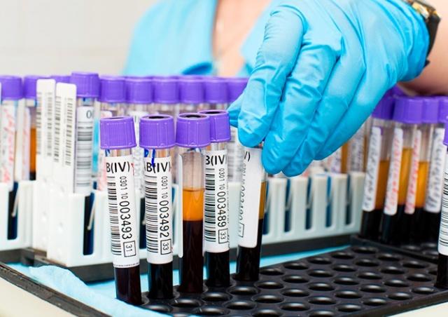 Чешские медики назвали число ВИЧ-инфицированных в 2018 году