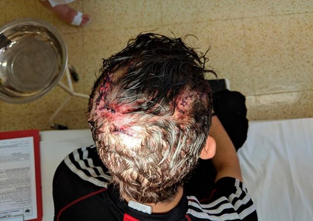 В Праге неизвестный камнем разбил голову прохожему