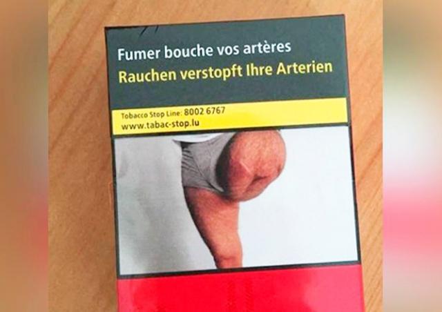 Житель Франции обнаружил на сигаретах фото своей ампутированной ноги