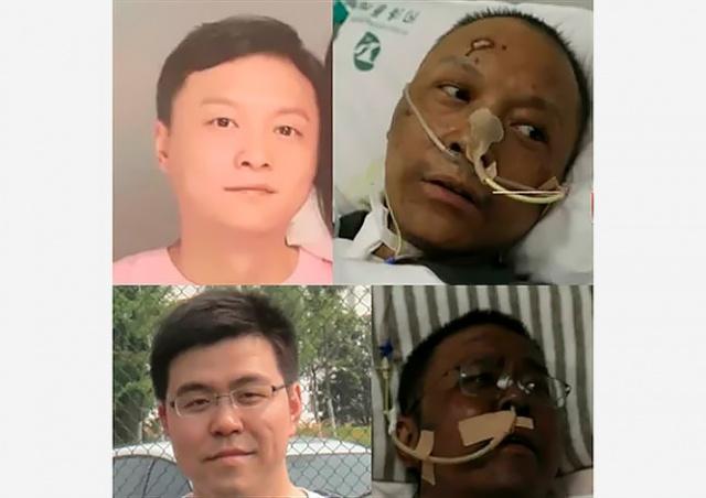 Двое китайских врачей почернели при лечении от коронавируса